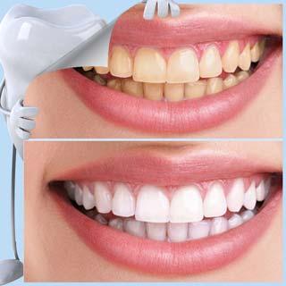 Система отбеливания зубов ZOOM-2