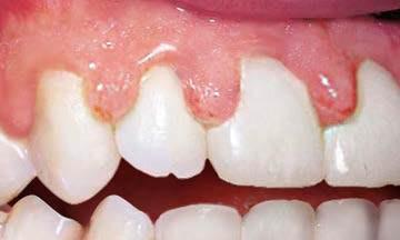 Воспаленные карманы около зубов