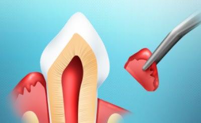 Удаление воспаленных тканей десны