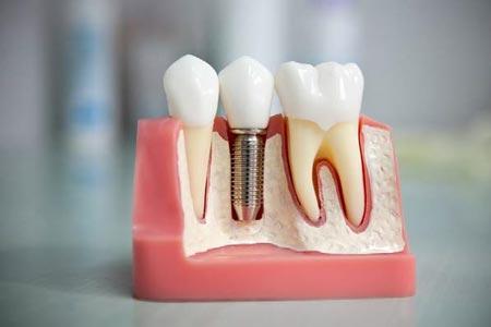 Понятие и преимущества имплантации зубов