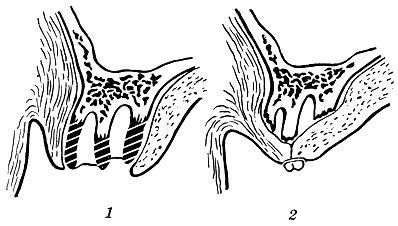 Альвеоктомия
