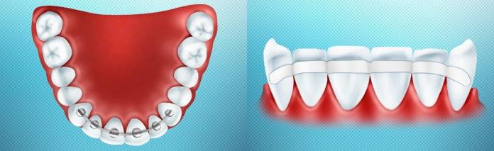 Как проводится шинирование зубов