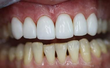 Реминерализация и фторирование зубов