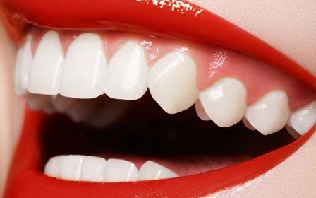 Отбеливающие полоски для зубов crest whitestrips 3d отзывы