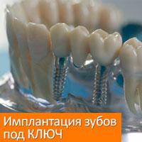 Имплантация зубов под КЛЮЧ - 42 000 рублей