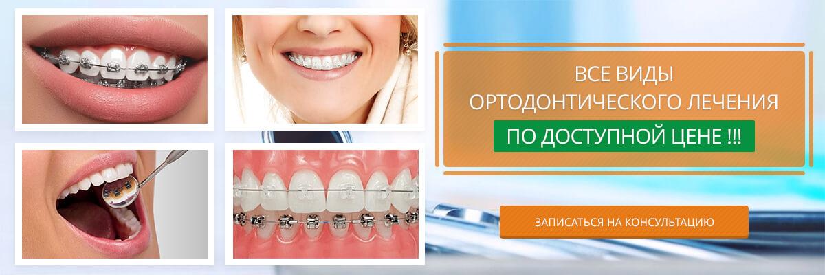 Все виды ортодонтического лечения по доступной цене !!!